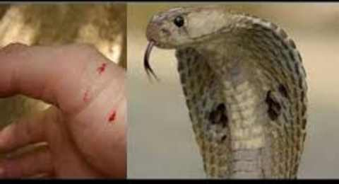 Snake Bite First Aid