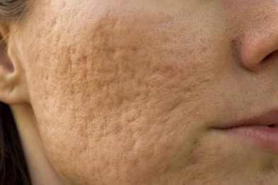 Photo of How to Get Rid of Large Pores and Blemishes