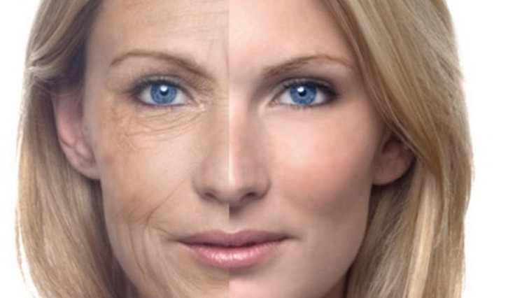 Photo of How to remove wrinkles naturally