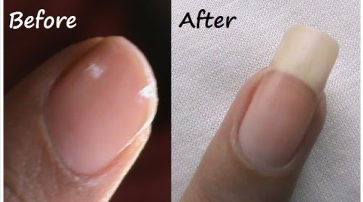 Photo of How to grow your nails really fast and long