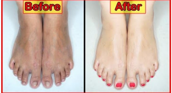 Photo of How to Do Feet Whitening Tan Removal Spa Pedicure At Home