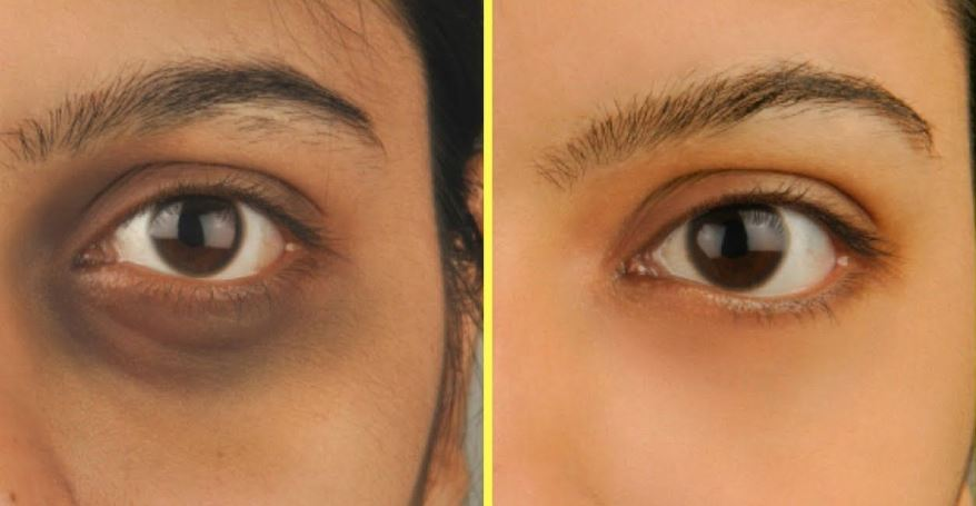 Photo of Natural Home Remedies to Remove Dark Circles