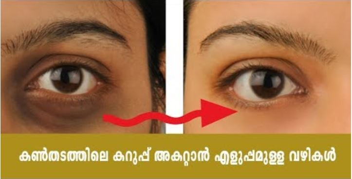 remove dark circles