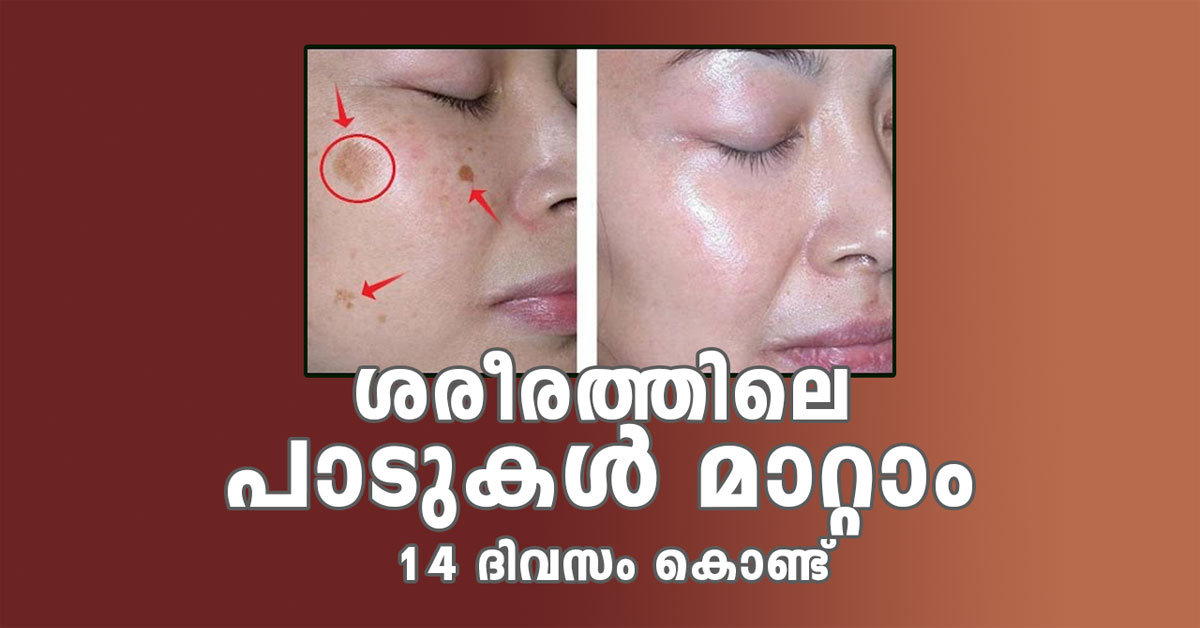 Remove Marks From Skin