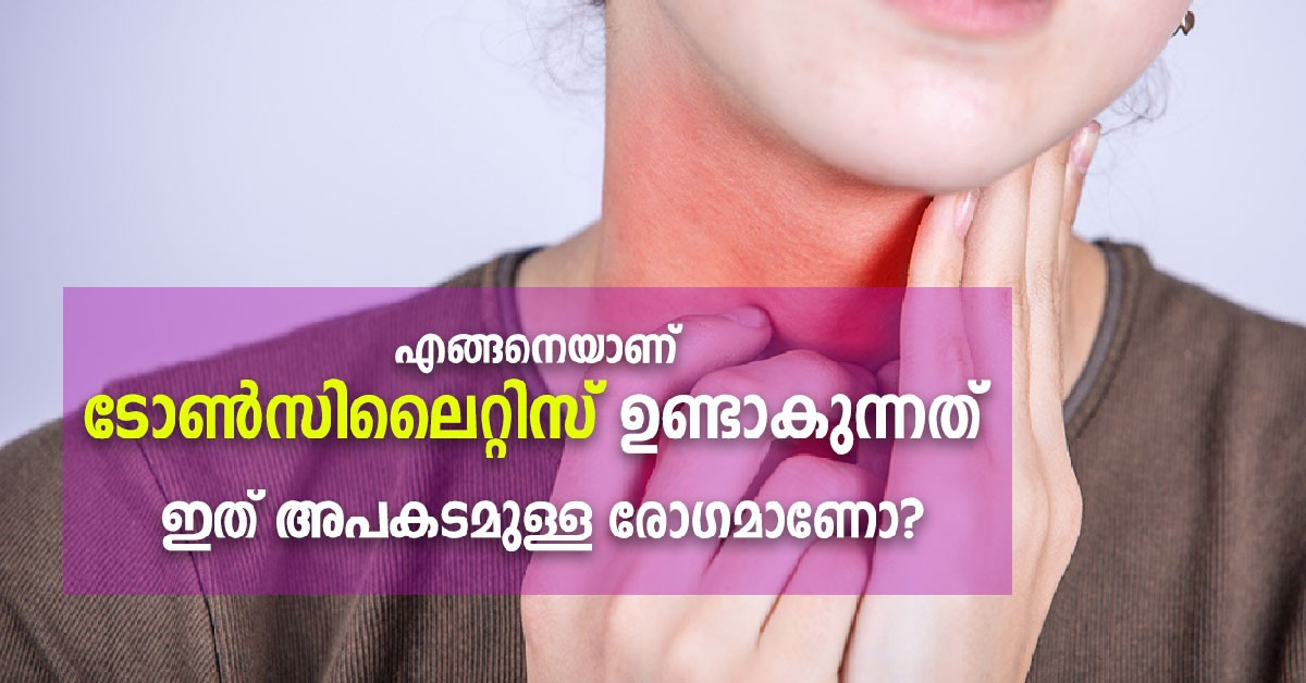 Photo of Tonsillitis: Causes, symptoms