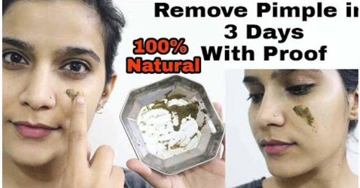 Photo of How to Remove Pimple In 3 Days 100% Natural