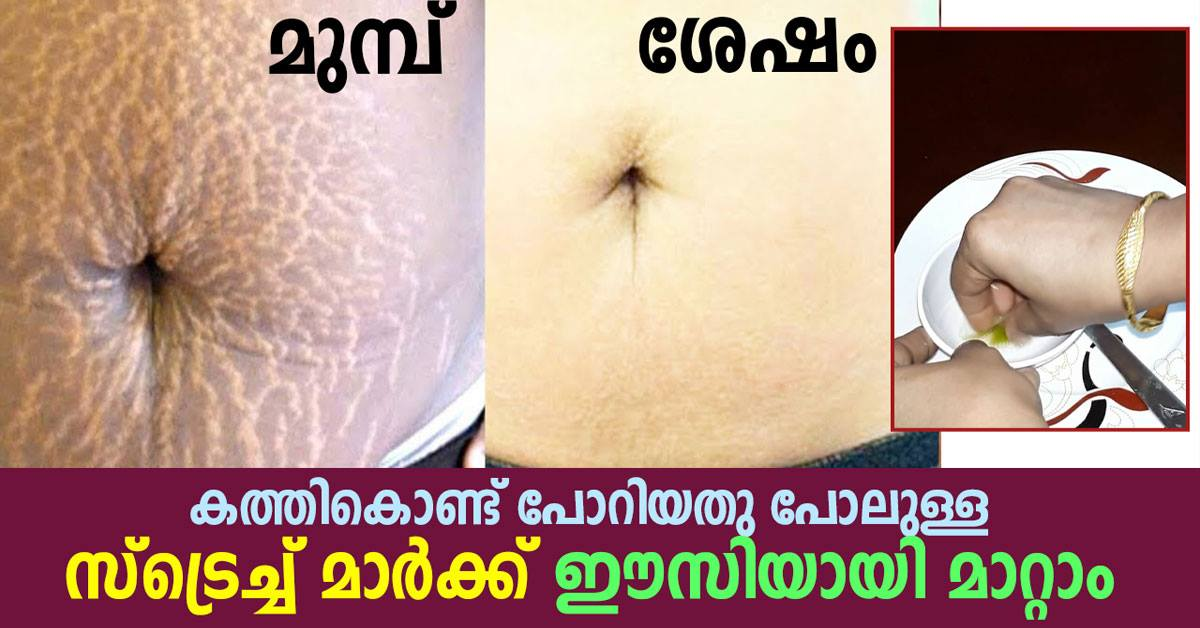 Photo of stretch marks home remedies