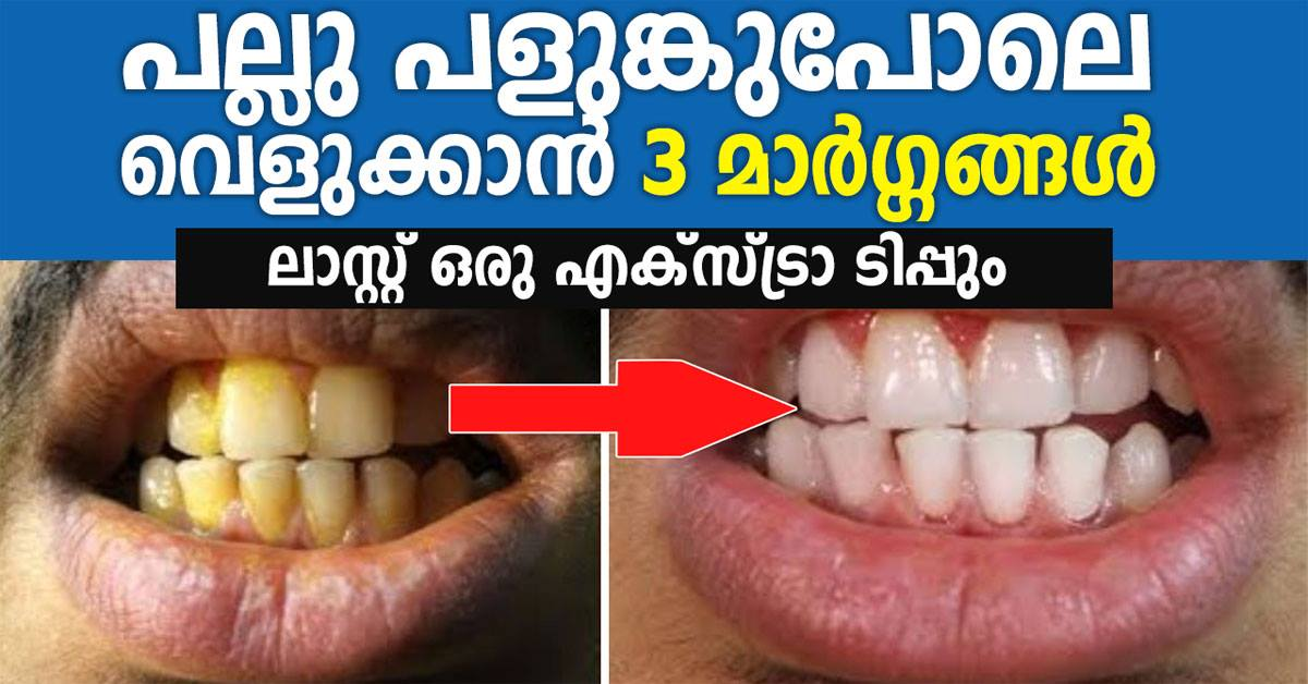 Photo of How to Whiten Teeth With Baking Soda