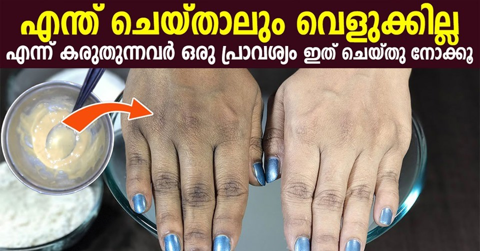 Photo of How to Lighten Skin on Hands and Feet