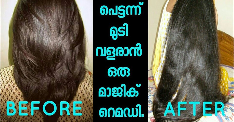 Photo of Miracle remedy for extreme hair growth.