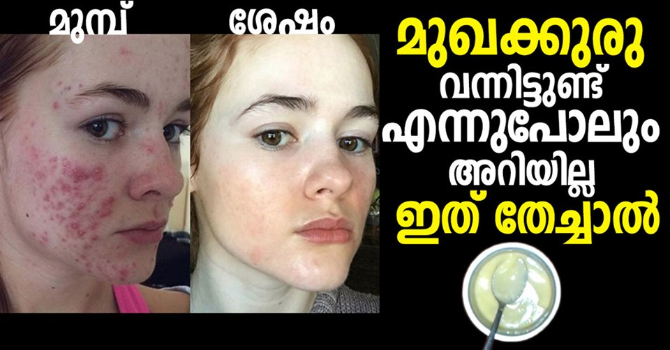 Photo of How do you prevent pimples