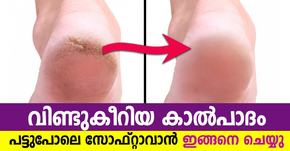 Photo of How to Fix Cracked Heels at Home