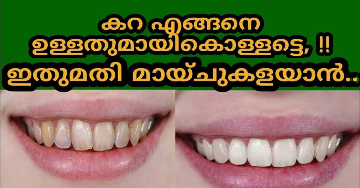 Photo of natural ways to whiten teeth