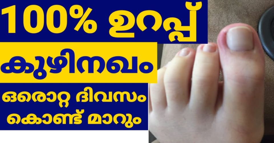 Photo of How to remove toenail fungus only 1 day