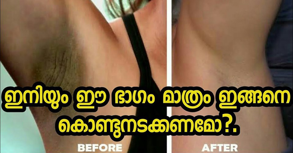 Photo of Effective Home Remedies for Dark Underarms