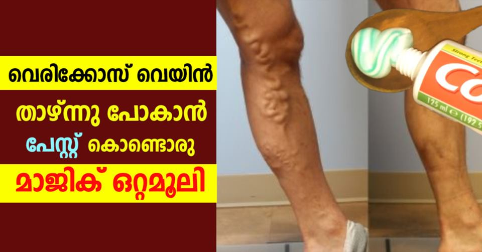 Photo of Home remedies for varicose veins