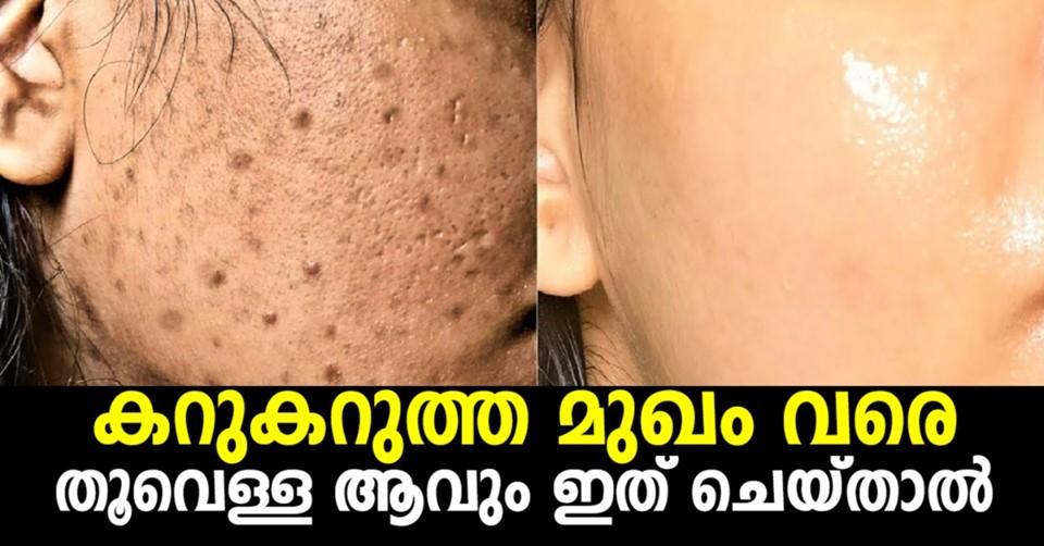 Photo of Benefits Of A Moringa Face Mask