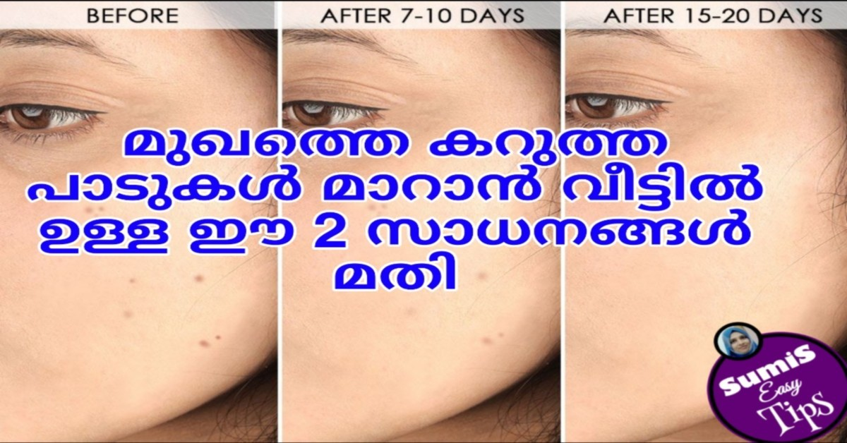 Photo of DIY Natural Remedies: How to Get Rid of Dark Spots on Face