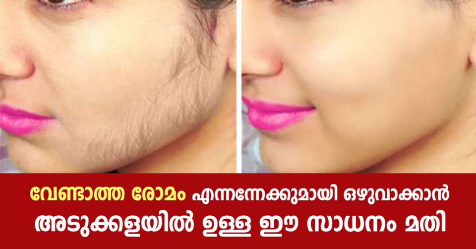 Photo of Ways to Naturally Get Rid of Facial Hair That Actually Work