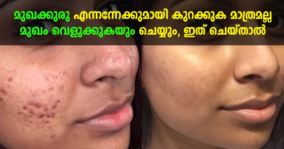 Photo of Pimples remedy