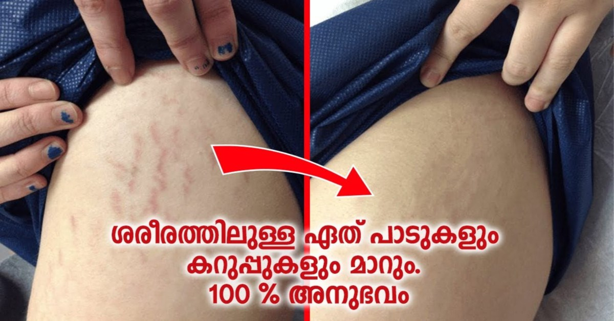 Photo of Any blemishes on the body will change. 100% experience
