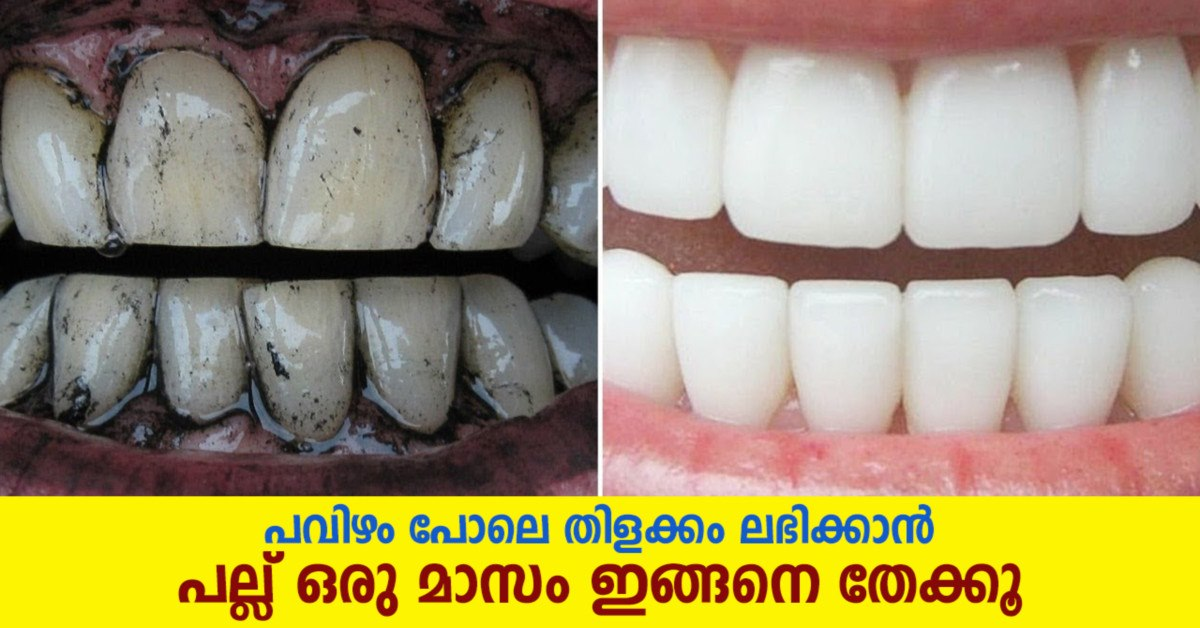 Photo of Top 5 Teeth Whitening Home Remedies